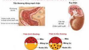 Đông trùng hạ thảo chữa bệnh thận
